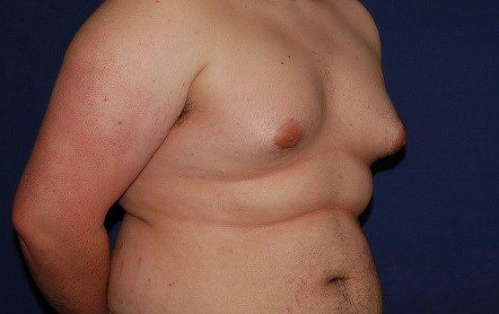 hombre con ginecomastia (tejido mamario)