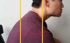 postura hombros adelantados