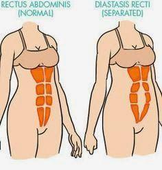 abdominales distendidos